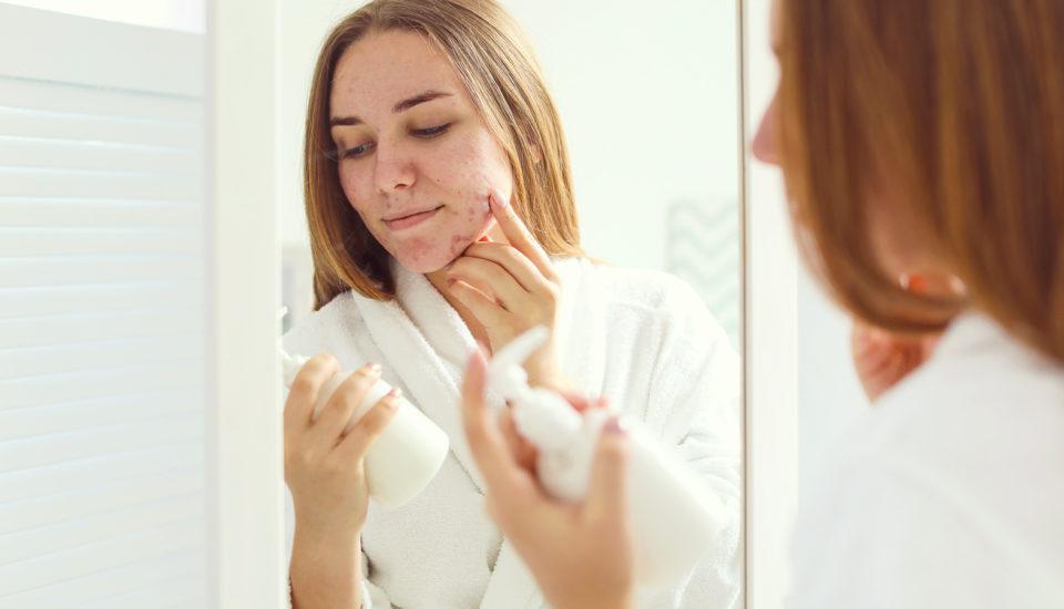 Jak jsem se zbavila akné? Můj příběh arady dermatologa